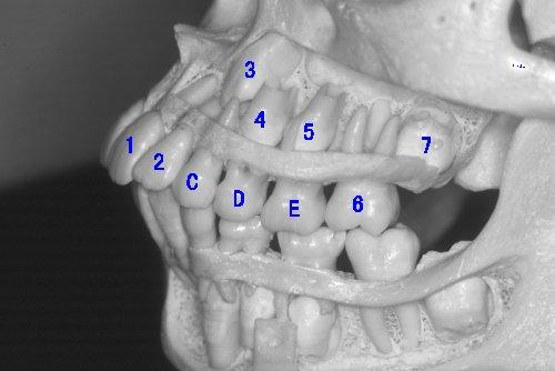 混合歯列期(小学生時期)の口腔