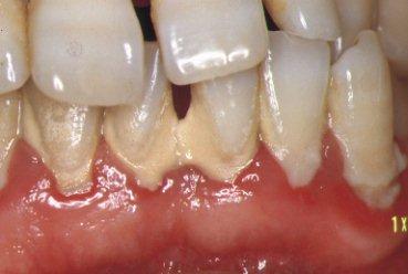 下顎前歯部歯肉