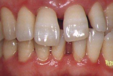 歯石除去とブラッシングにて改善