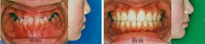 矯正治療下顎前突