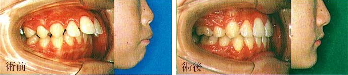 矯正治療上顎前突